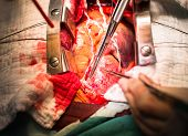 pic of open heart surgery  - Make Suture Ascending Aorta before cannulate cannular - JPG