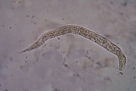 pic of parasite  - Strongyloides stercoralis is a human parasitic roundworm causing the disease strongyloidiasis - JPG