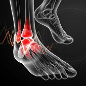 picture of orthopedic surgery  - 3d render medical illustration Ankle pain  - JPG