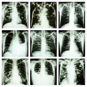 image of tuberculosis  - Collection of lung disease  - JPG
