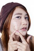 pic of pimples  - Portrait of adolescent girl pressing pimple on her cheek isolated on white background - JPG