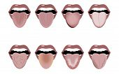Definition Of The Disease By Tongue. Open Mouth And Tongue Sticking Out. Changes In Color And Appear poster