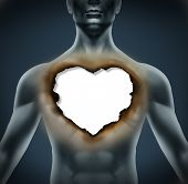 pic of love hurts  - Emotional Grief and depression as a result of a broken romantic relationship as a human body with a burnt paper in the shape of a love heart symbol representing stress and despair - JPG
