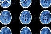 picture of temporal lobe  - Ischemic stroke  - JPG