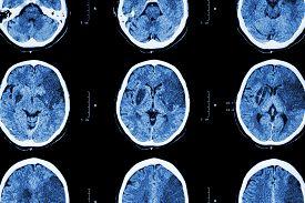 picture of frontal lobe  - Ischemic stroke  - JPG