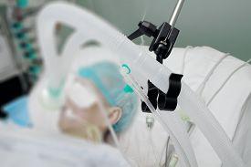 foto of icu  - Breathing circuit of patient on the ventilator in ICU - JPG