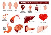 Постер, плакат: Obesity And Overweight Infographic