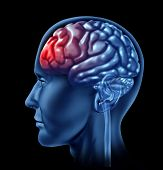 foto of frontal lobe  - Human brain with red head ache symbol representing pain and therapy for medical health issues - JPG