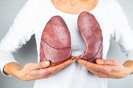 picture of medical condition  - Woman showing two artificial model lungs in front of chest - JPG