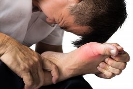 image of gout  - Man with painful and inflamed gout on his foot around the big toe area - JPG