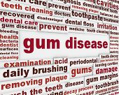 stock photo of molar  - Gum disease warning message - JPG
