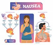 Nausea Vector Illustration. Labeled Medical Vomiting Explanation Scheme. Anatomical Infographic With poster