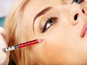 stock photo of collagen  - Beauty woman giving botox injections - JPG