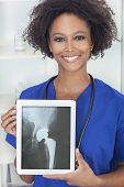stock photo of pelvis  - An African American female woman medical doctor in hospital holding a tablet computer with a hip replacement patient X - JPG