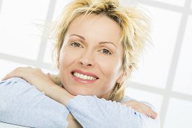 image of birthmark  - Forty years old woman - JPG