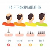 Hair Transplantation Surgery Steps Infographics. Man Patient Before And After Procedure. Male Hair L poster