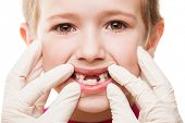 foto of bad teeth  - Dental medicine and healthcare  - JPG