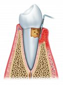 image of gingivitis  - Gingivitis in a state of deterioration of gum and tooth - JPG