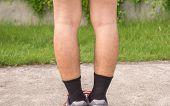 Asian Man Leg Bandy-legged Shape Of The Legs,selective Focus poster