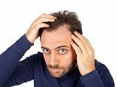 image of dandruff  - Caucasian young man controls hair loss on white background - JPG