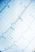 Close up of an electrocardiogram in paper form. poster