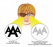 picture of spatial  - medical illustration of the symptoms and consequences of amblyopia - JPG