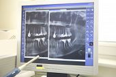foto of missing teeth  - Root canal showing on an xray of teeth at dentist office