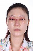 picture of nose  - woman with nose and eye swelll after nose job plastic surgery - JPG