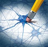 stock photo of nerve cell  - Brain disease dementia problems with loss of memory function for alzheimers as a medical health care icon of neurology and mental illness as a pencil erasing neuron cells from the human anatomy - JPG