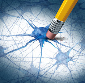 picture of neuron  - Brain disease dementia problems with loss of memory function for alzheimers as a medical health care icon of neurology and mental illness as a pencil erasing neuron cells from the human anatomy - JPG