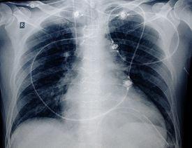 pic of catheter  - roentgenogram of patient - JPG