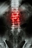 "picture of spine  - ""Spondylosis"" film x-ray L-S spine (lumbar-sacrum) of old aged patient and inflammation at spine - JPG"