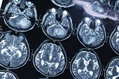 picture of ct scan  - research in medicine - JPG
